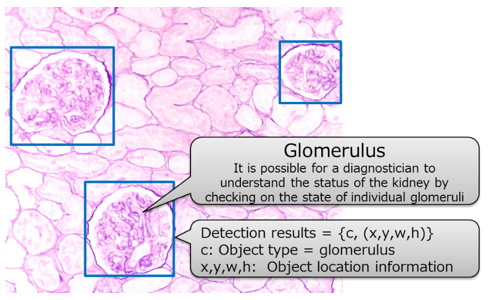 Figure 1: Kidney biopsy image and glomerulus detection