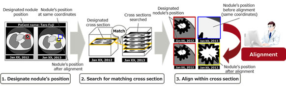 Figure 1: Observing changes in nodules over time by comparing images