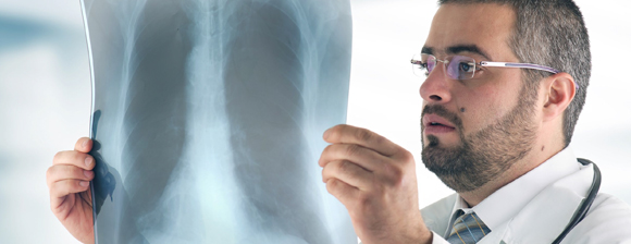 Doctor holding up an X-Ray of a persons chest